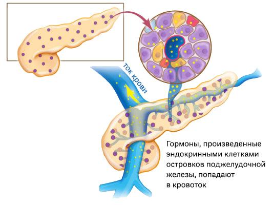 Нейроэндокринная опухоль поджелудочной железы