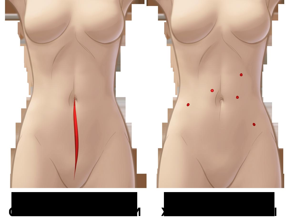 разрезы при роботической гистерэктомии