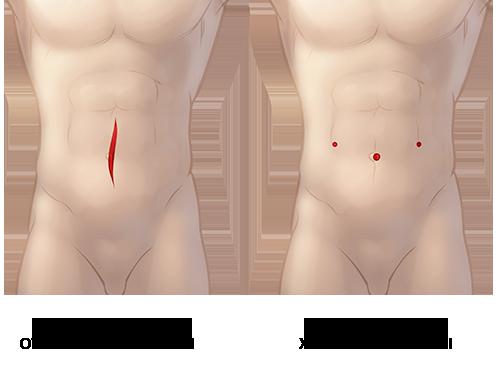 разрезы при робот-ассистированной герниопластике