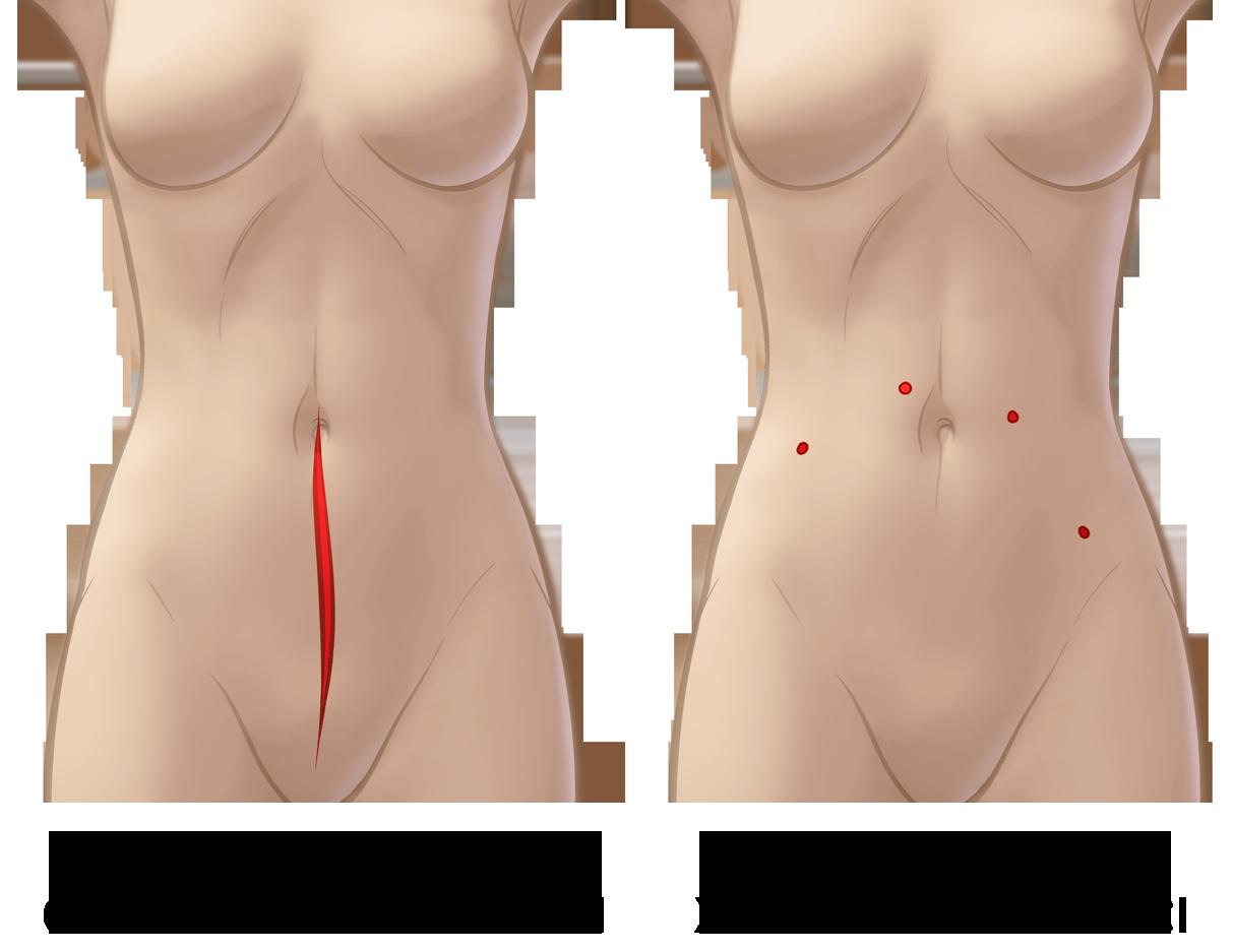разрезы при робот-ассистированной резекции эндометриоза