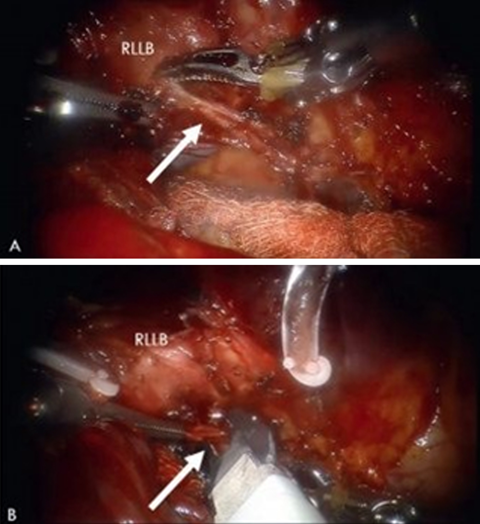 Этап обработки бронхиальной артерии