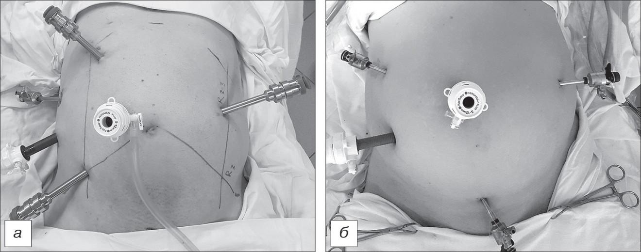 Расположение портов при Р-А (а) и лапароскопической ЛС (б) операциях