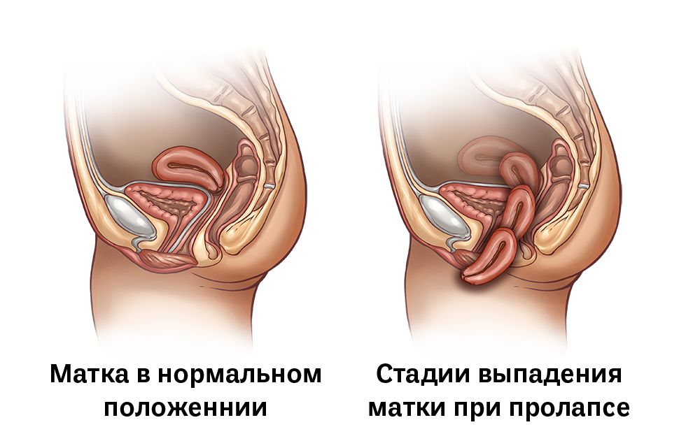 стадии пролапса тазовых органов