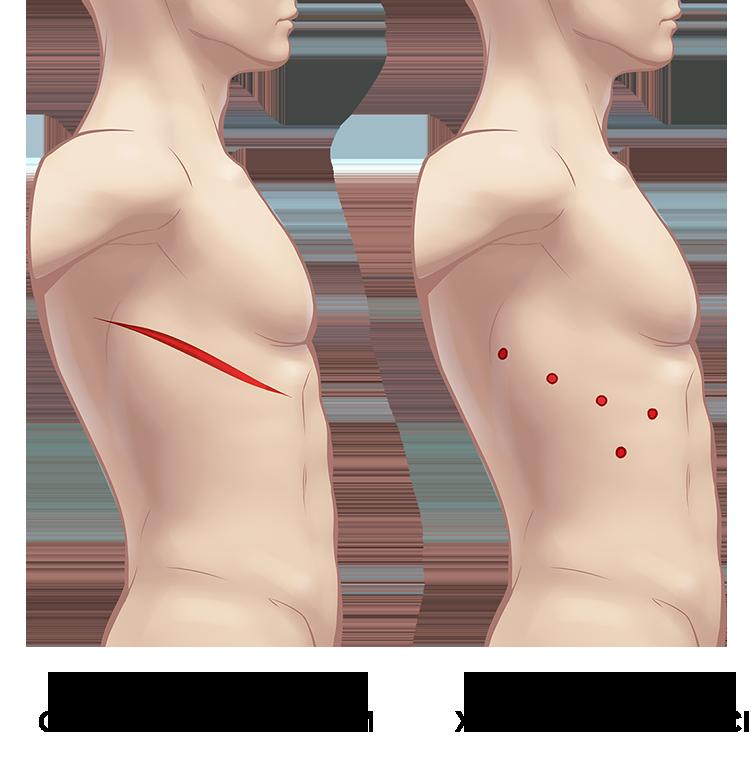 разрезы при роботическом удалении опухолей средостения