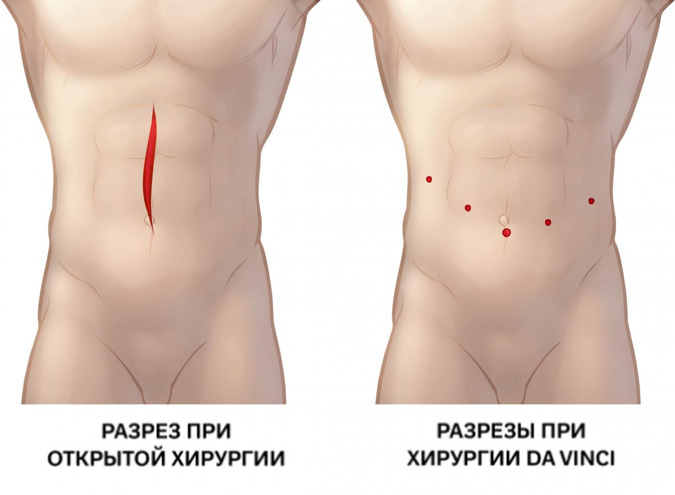 Разрез при открытой операции и при операции с da Vinci