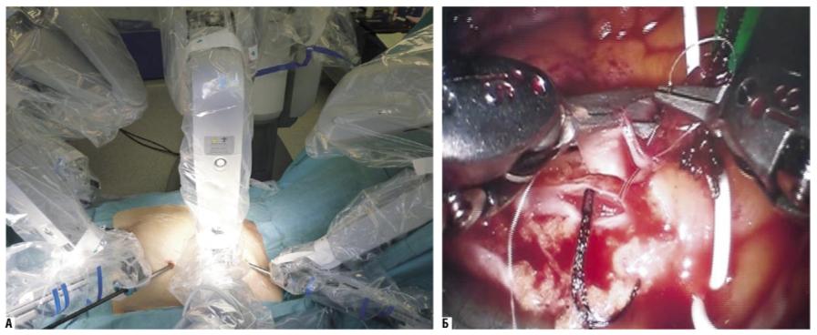 Выполнение маммарокоронарного шунтирования на работающем сердце с использованием системы «да Винчи»