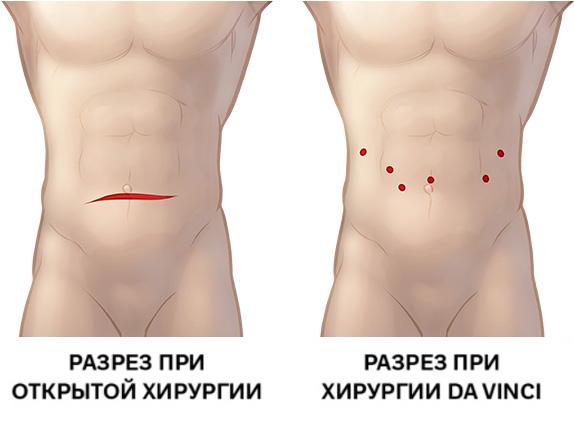 Хирургический разрез при открытой операции и операции с использованием da Vinci