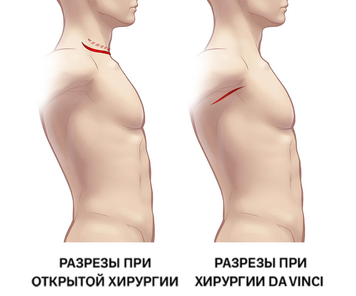 Хирургические разрезы при операции на щитовидной железе
