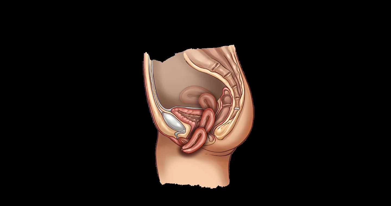 Опущение тазовых органов