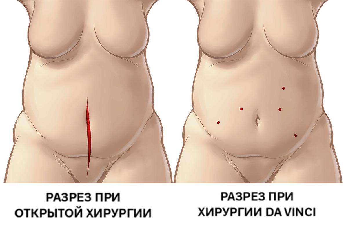 Рак эндометрия: разрез при полостной операции и робот-ассистированной операции da Vinci