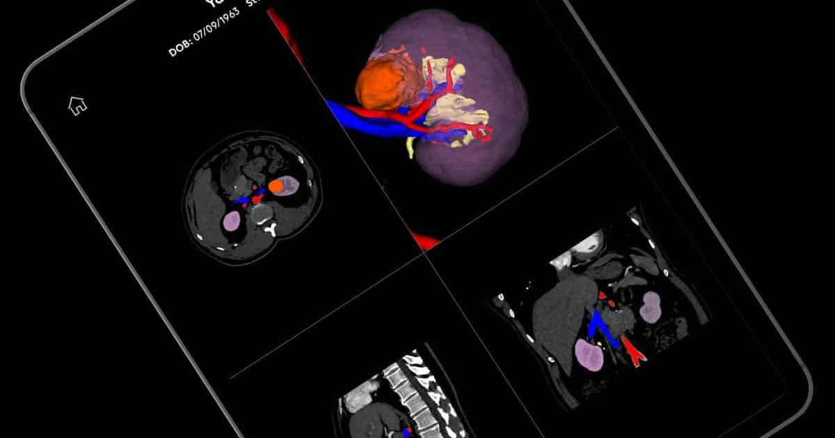 Iris - приложение анатомической визуализации