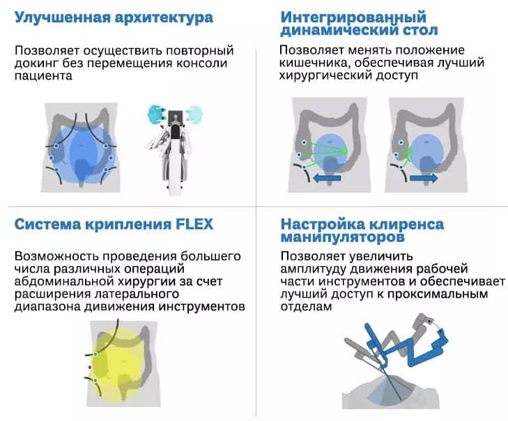 Преимущества использования da Vinci Xi в абдоминальной хирургии