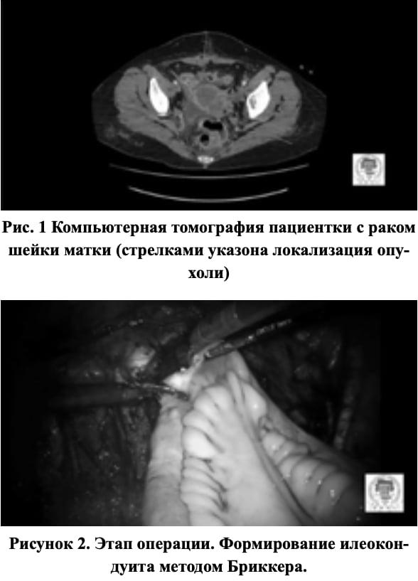 Копьютерная томография пациентки с раком шейки матки