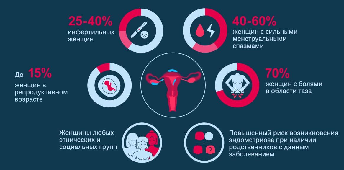 Об эндометриозе в инфографике