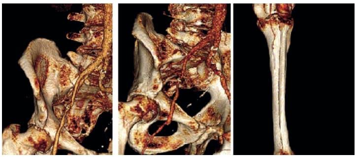 Рис. 1. Результаты мультиспиральной компьютерной томографии-ангиографии с 3D-реконструкцией инфраренального отдела аорты и артерий нижних конечностей до операции