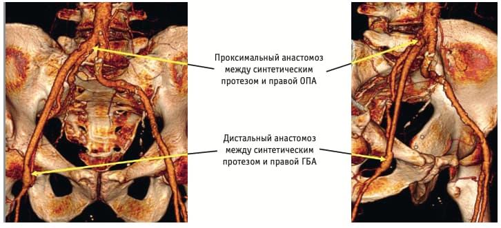 Рис. 3. Результаты мультиспиральной компьютерной томографии-ангиографии с 3D-реконструкцией инфраренального отдела аорты и артерий нижних конечностей после операции