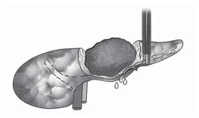 """Рис. 2. Энуклеация нейроэндокринной опухоли """"на пальце"""". Пальцем левой руки, подведенным под ПЖ, опухоль смещается кпереди, что обеспечивает ее конту- рирование в паренхиме органа и сдавление прилежащих сосудов."""