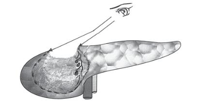 Рис. 3. Источник кровотечения находится на боковой стенке трапециевидной полости вне поля зрения и труд- но досягаем для инструментов.
