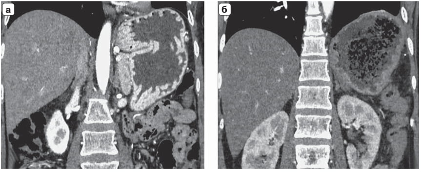 Компьютерная томограмма. Желудок, артериальная фаза: а – гипертрофированные складки слизистой желуд- ка до операции; б – нормальная складчатость на 9-е сутки после операции.