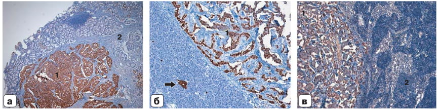 Микрофото. Иммуногистохимическое исследование: а – гастринома, экспрессия гастрина в клетках нейроэндокринной опухоли (1) подслизистого слоя стенки ДПК (2); ×50; б – инсулинома, экспрессия инсулина в клетках нейроэндокринной опухоли (1) и в островке Лангерганса ткани ПЖ (стрелка); ×100; в – лимфатический узел с метастазом гастриномы, экспрессия гастрина (1) в клетках метастаза нейроэндокринной опухоли, лимфоидная ткань (2); ×100.