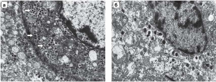 Рис. 6. Электронное микрофото: а – опухолевая клетка со специфическими нейросекреторными гастринпродуциру- ющими гранулами (стрелки); б – опухолевая инсулинсодержащая клетка со специфическими нейросекреторными гранулами; ×14000.