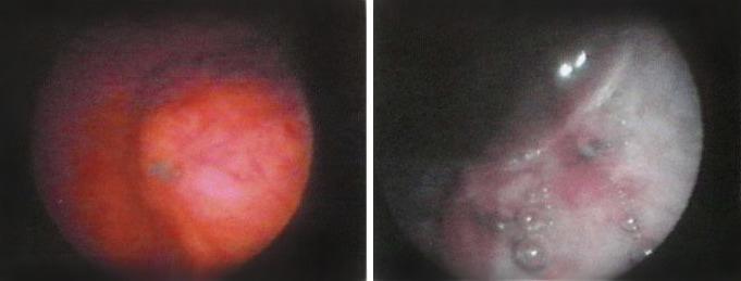 Эндометриоз мочевого пузыря. Цистоскопия