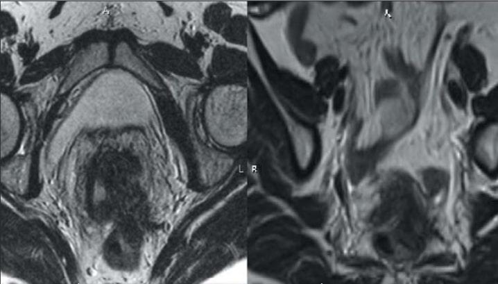 Эндометриоз, компьютерная томограмма