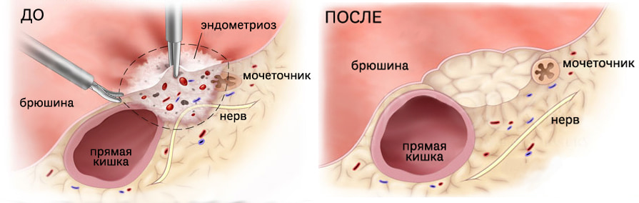 Минимально инвазивная хирургия при эндометриозе