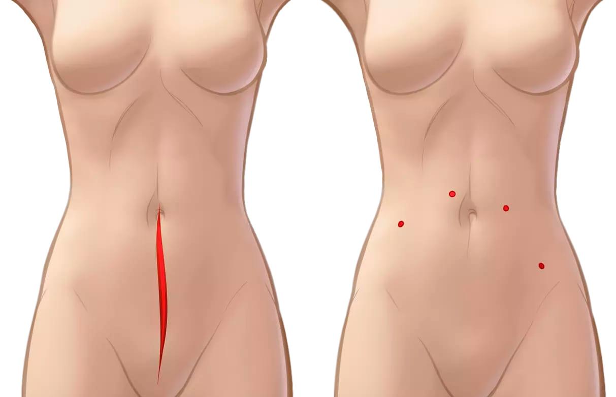 Разрезы при роботической операции по поводу эндометриоза