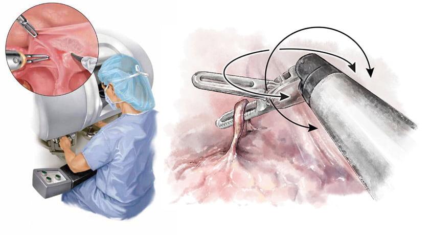 Лечение эндометриоза с использованием робота да Винчи