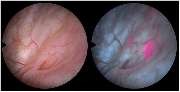 флуоресцентная цистоскопия