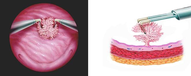 Трансуретральная резекция опухоли мочевого пузыря