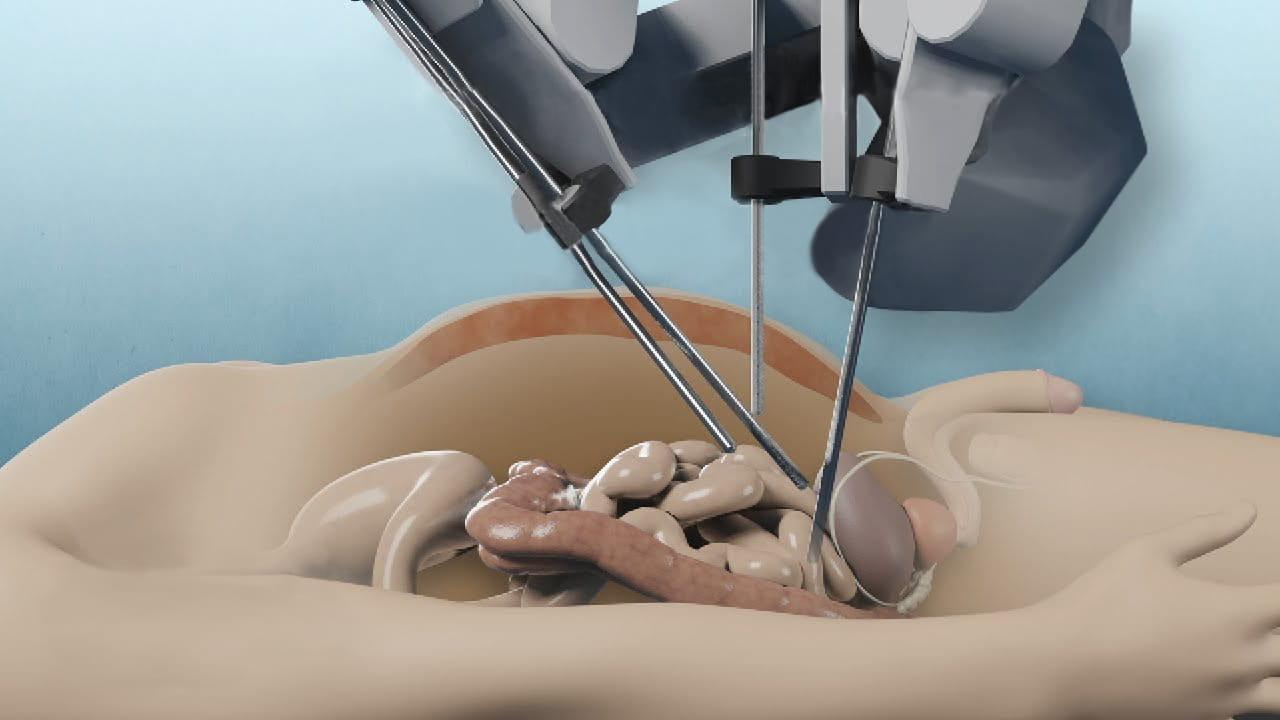 Лечение рака мочевого пузыря при помощи робота да Винчи