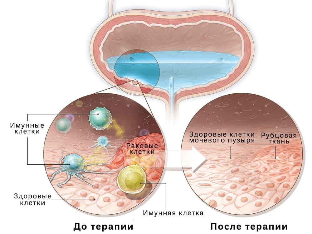 Интравезикулярная (внутрипузырная) терапия